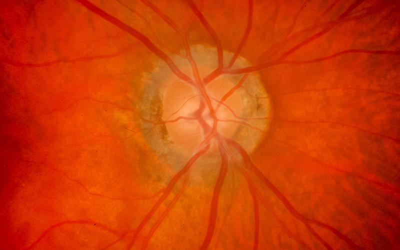 Retina & Vitreous Diseases